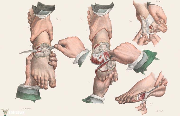19. yydan cerrahi çizimler 7