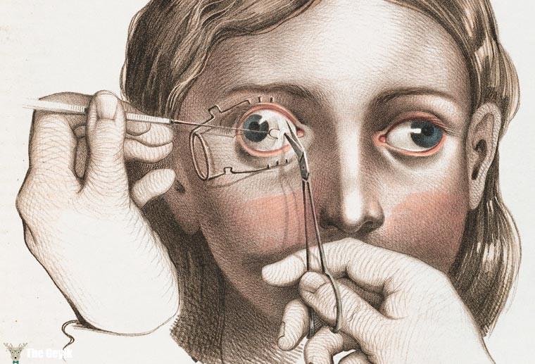 19. yydan cerrahi çizimler 8